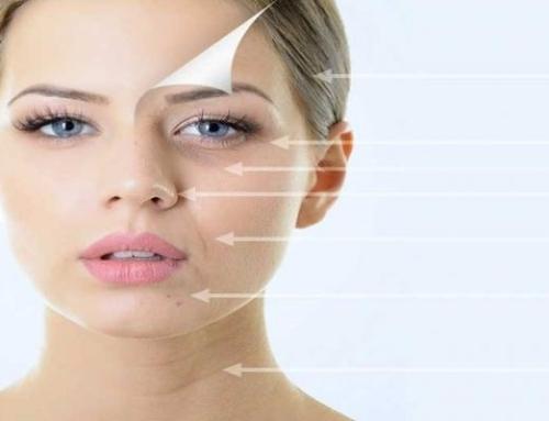PSR یا بازسازی پوست با پلاسما