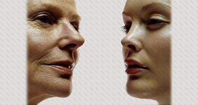 بازسازی پوست با پلاسما