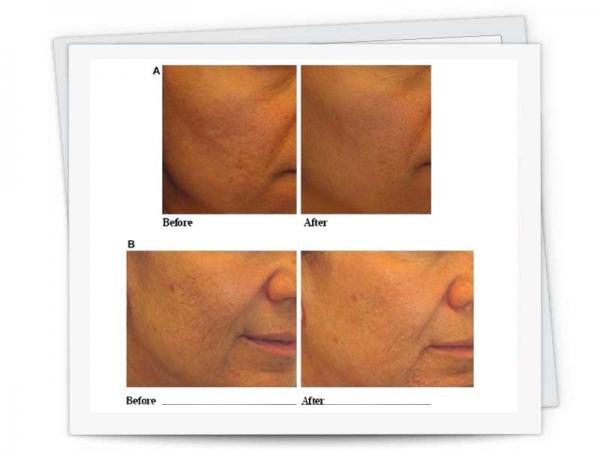 پلاسما ماتریکس و بازسازی پوست
